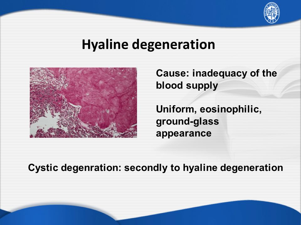 Hyaline degeneration Cause: inadequacy of the blood supply