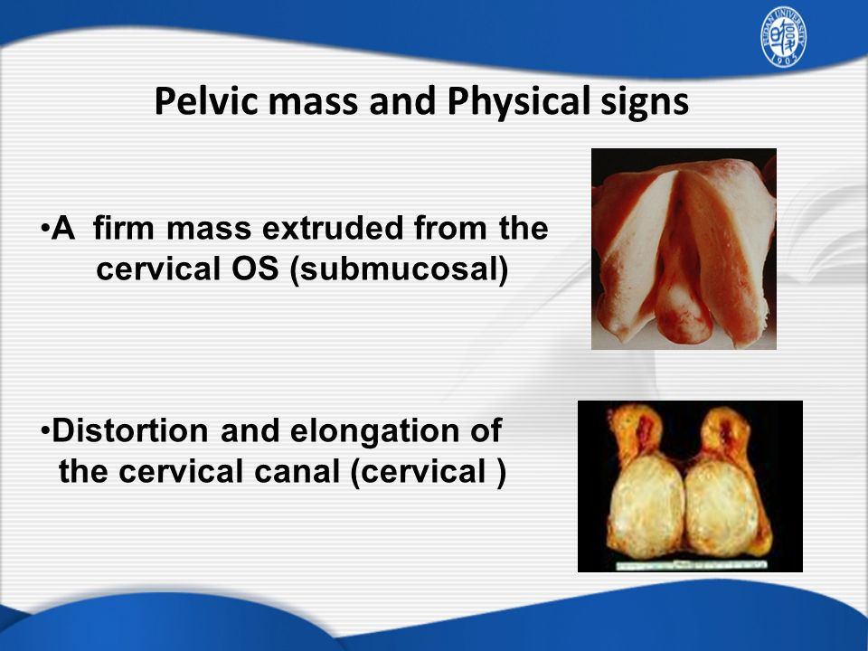 Pelvic mass and Physical signs