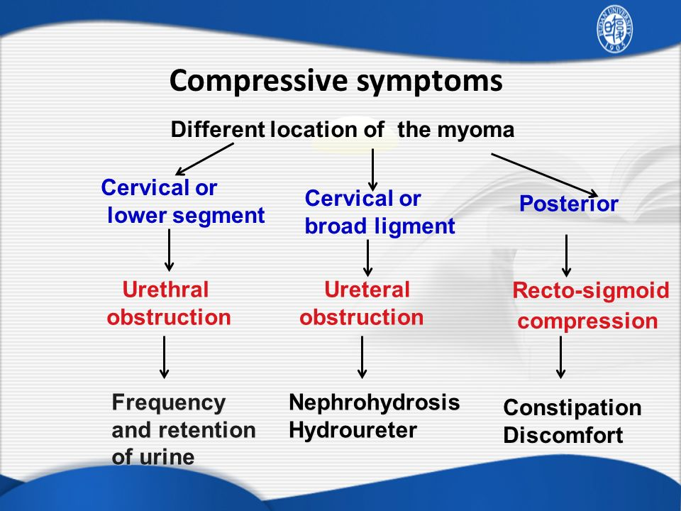 Compressive symptoms Different location of the myoma Cervical or