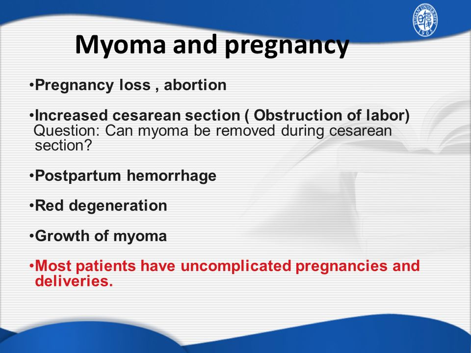 Myoma and pregnancy Pregnancy loss , abortion