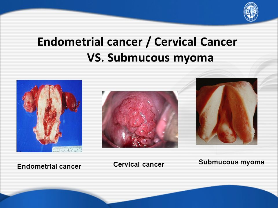 Endometrial cancer / Cervical Cancer VS. Submucous myoma
