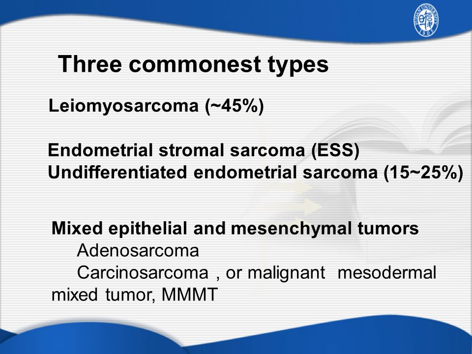 Three commonest types Leiomyosarcoma (~45%)