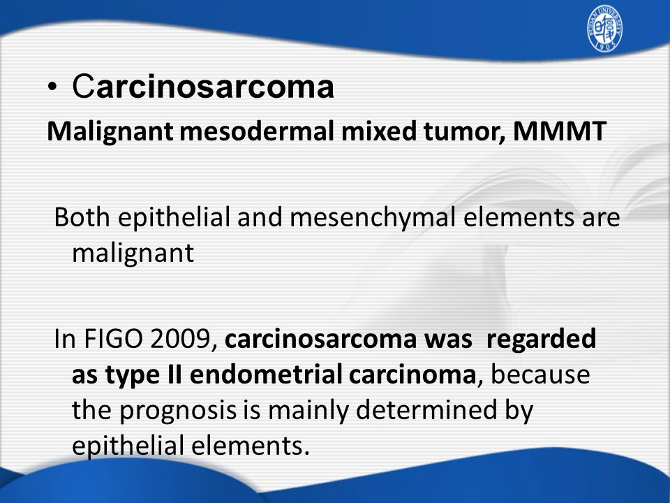 Carcinosarcoma Malignant mesodermal mixed tumor, MMMT