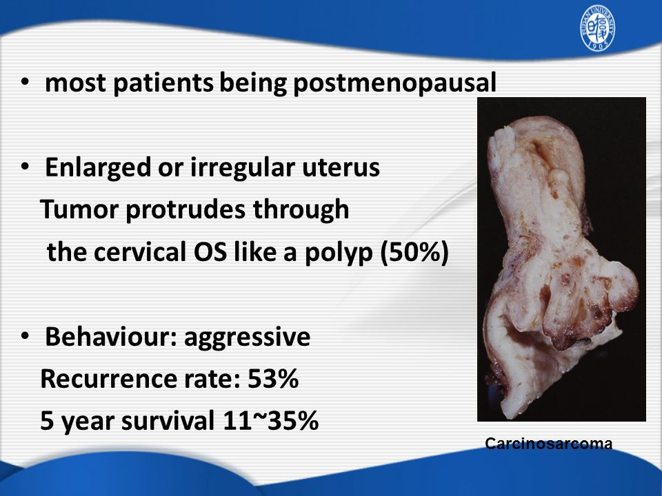 most patients being postmenopausal Enlarged or irregular uterus