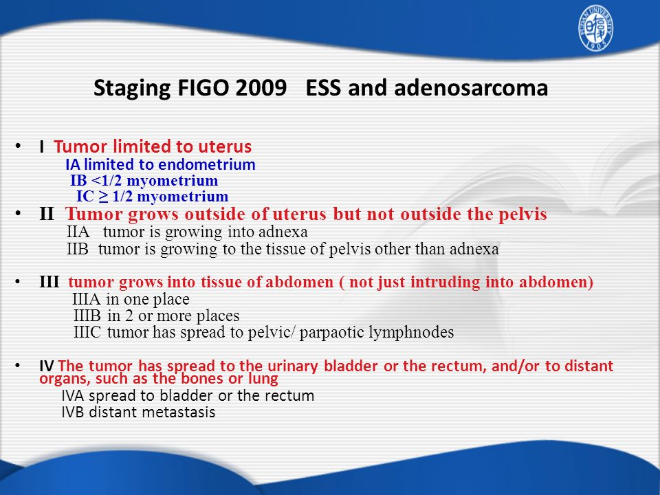 Staging FIGO 2009 ESS and adenosarcoma