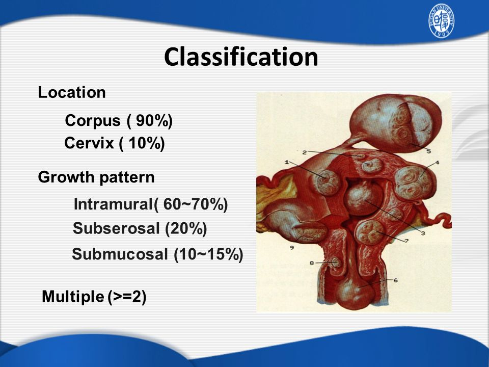 Classification Location Corpus ( 90%) Cervix ( 10%) Growth pattern