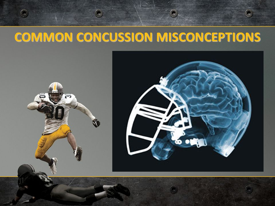 how to know if i have a concussion