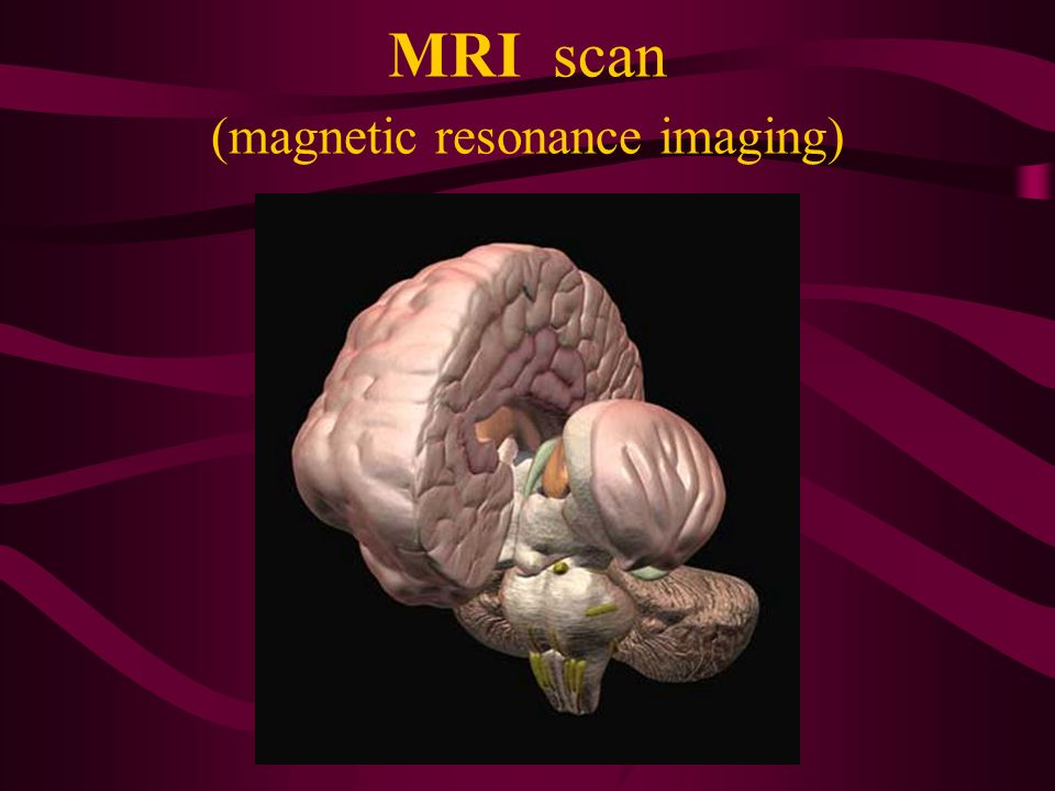 MRI scan (magnetic resonance imaging)