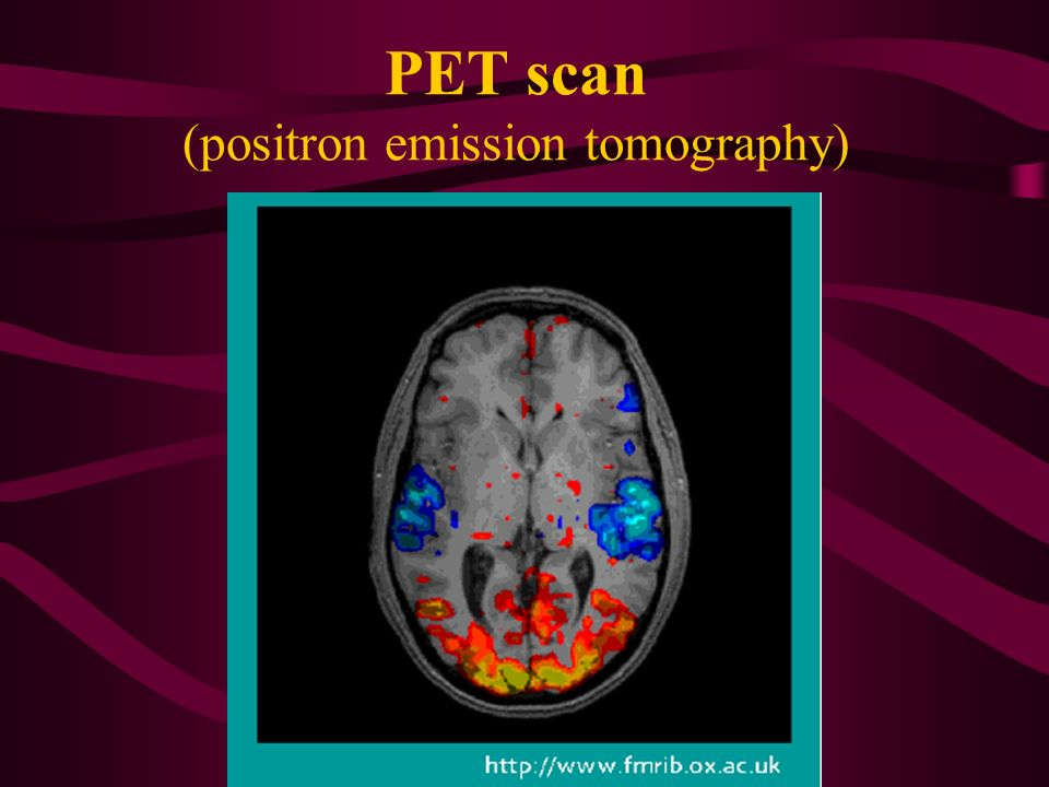 positron emission tomography pet scan Scan for mobile link positron emission tomography - computed tomography (pet/ct) positron emission tomography (pet) uses small amounts of radioactive materials called.