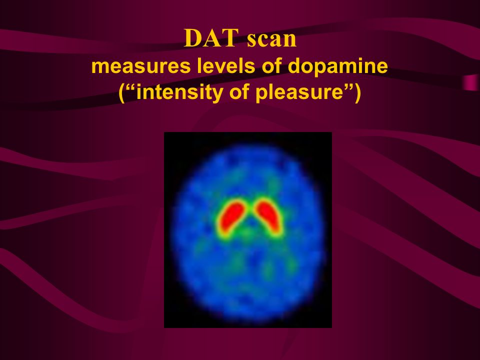 DAT scan measures levels of dopamine ( intensity of pleasure )