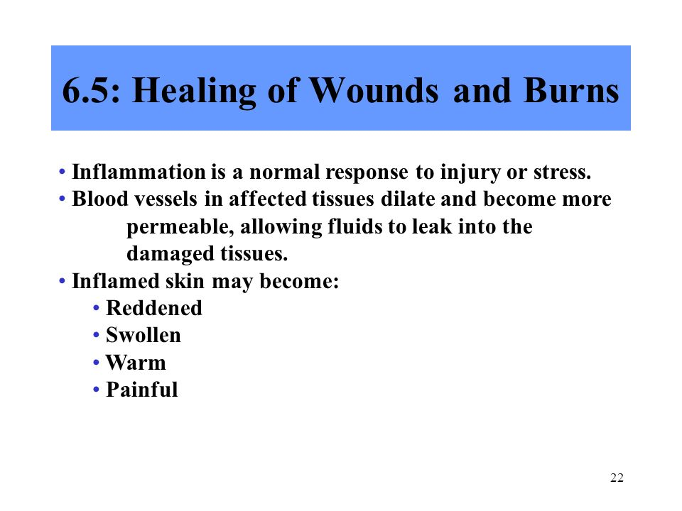 6.5: Healing of Wounds and Burns