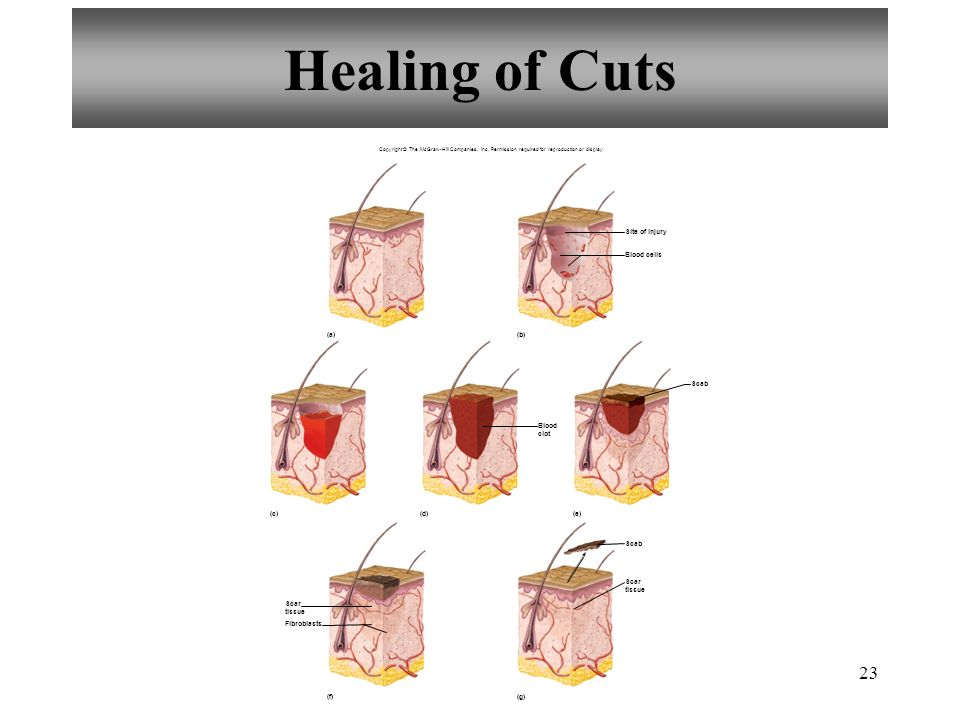 Healing of Cuts Site of injury Blood cells (a) (b) Scab Blood clot (c)