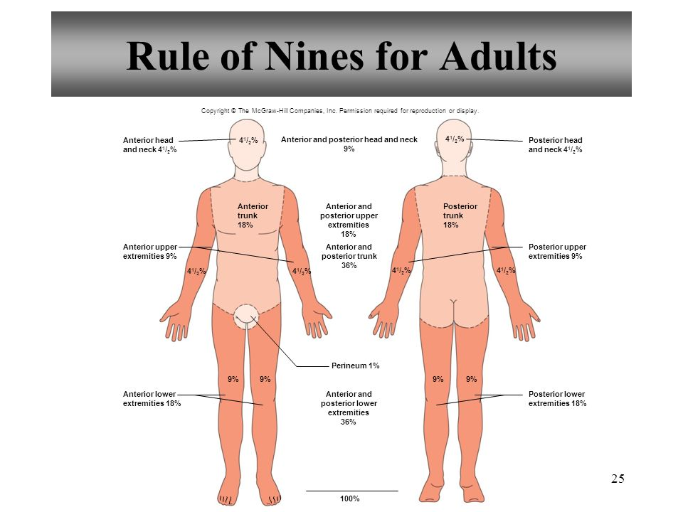 Rule of Nines for Adults