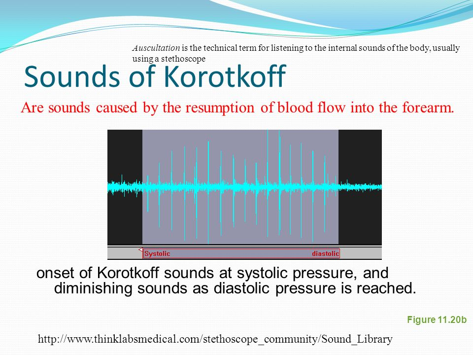 Korotkoff Sounds - Auscultatory blood pressure measurement showing onset of Korotkoff sounds at systolic pressure, and diminishing sounds as diastolic pressure is reached. Note that last (diastolic) pulse is barely audible but clearly visible.