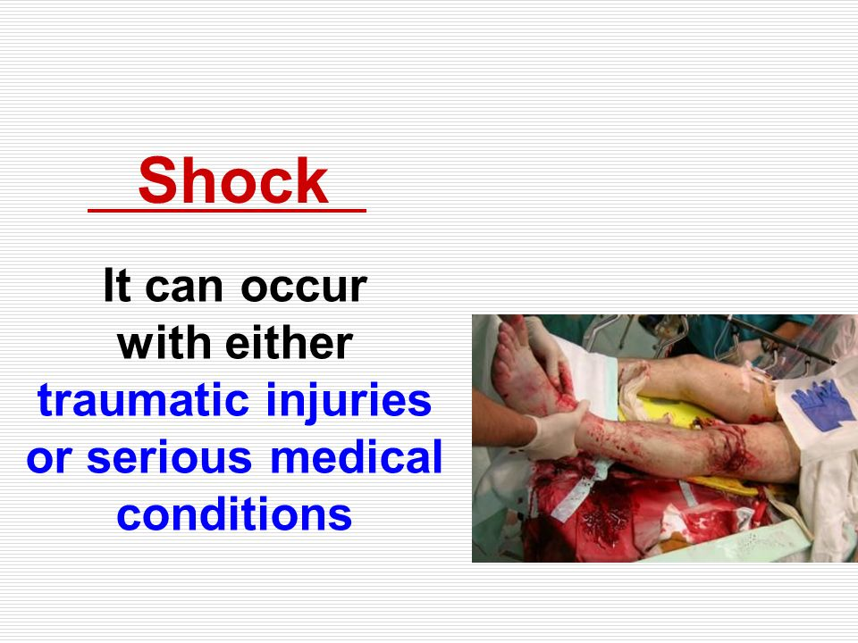 Shock It can occur with either traumatic injuries or serious medical conditions