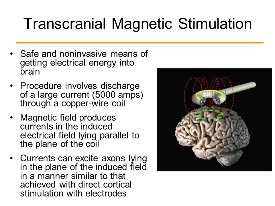 transcranial magnetic stimulation essay Transcranial magnetic stimulation = order description • investigation into the effectiveness of transcranial magnetic stimulation in the diagnoses and treatment of psychological disorders in specific major depressive disorder, anxiety and obsessive compulsive disorder (mechanistic study) the post transcranial magnetic stimulation appeared.