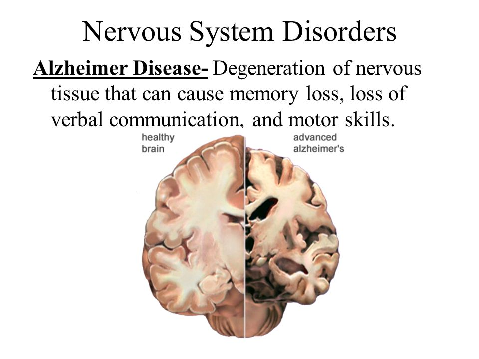 nervous system and nervous tissue The central nervous system is made up of the brain and spinal cord it gathers information from all over the body and coordinates activity we explore the types of cells involved, the regions of.