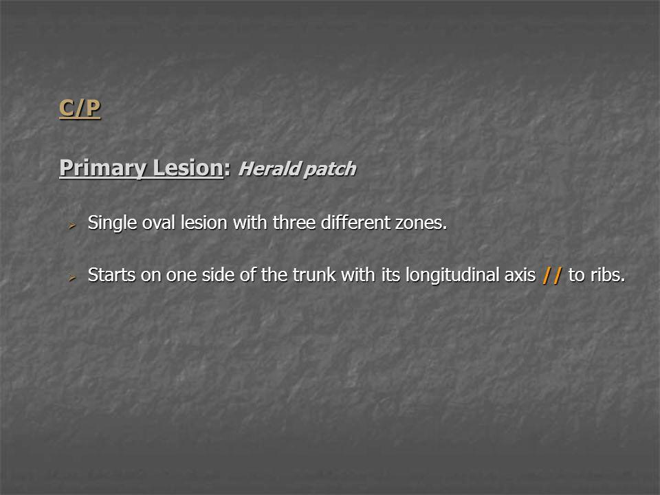 C/P Primary Lesion: Herald patch