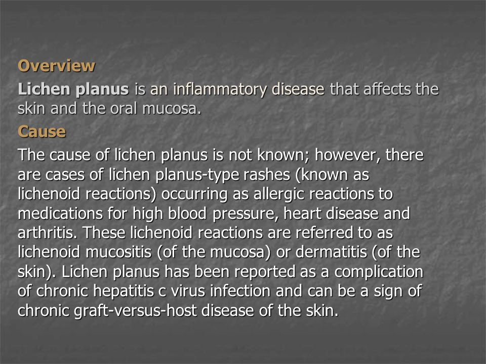 Overview Lichen planus is an inflammatory disease that affects the skin and the oral mucosa. Cause.