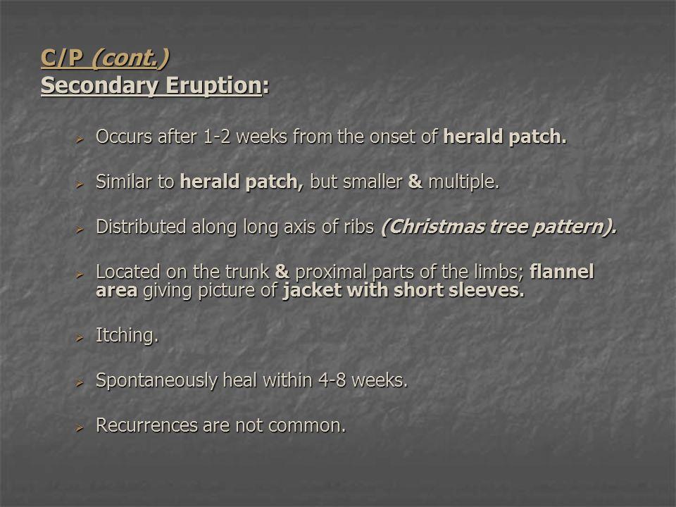 C/P (cont.) Secondary Eruption: