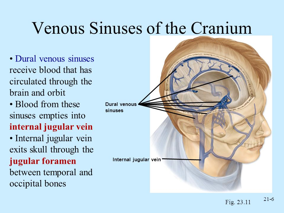 Venous Sinuses of the Cranium