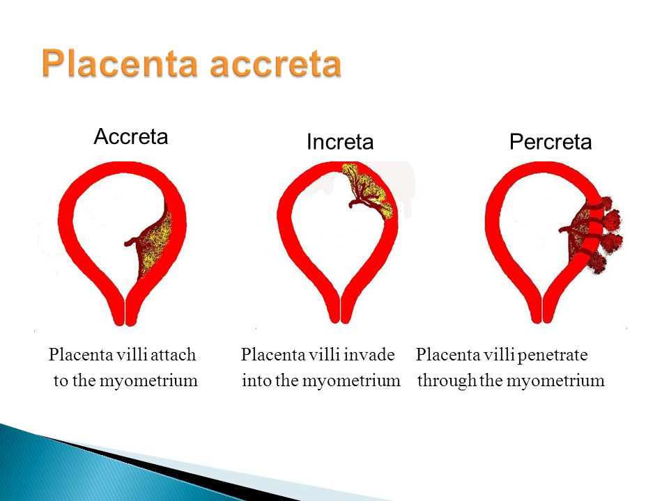placenta acrreta Placenta accreta is one of the less placenta accreta: clinical manifestations and conservative management original article from the new england journal of.