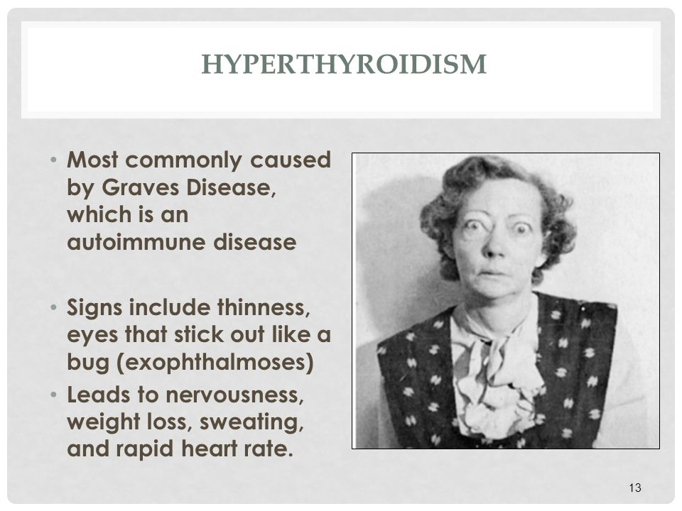 HYPERTHYROIDISM Most commonly caused by Graves Disease, which is an autoimmune disease.