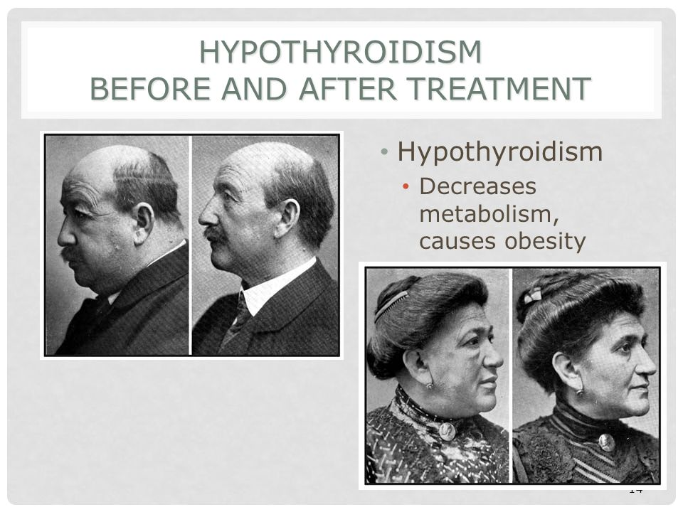 Hypothyroidism Before and After Treatment