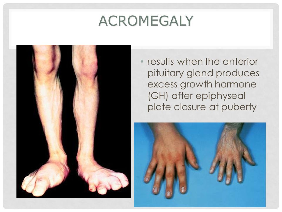 Acromegaly results when the anterior pituitary gland produces excess growth hormone (GH) after epiphyseal plate closure at puberty.
