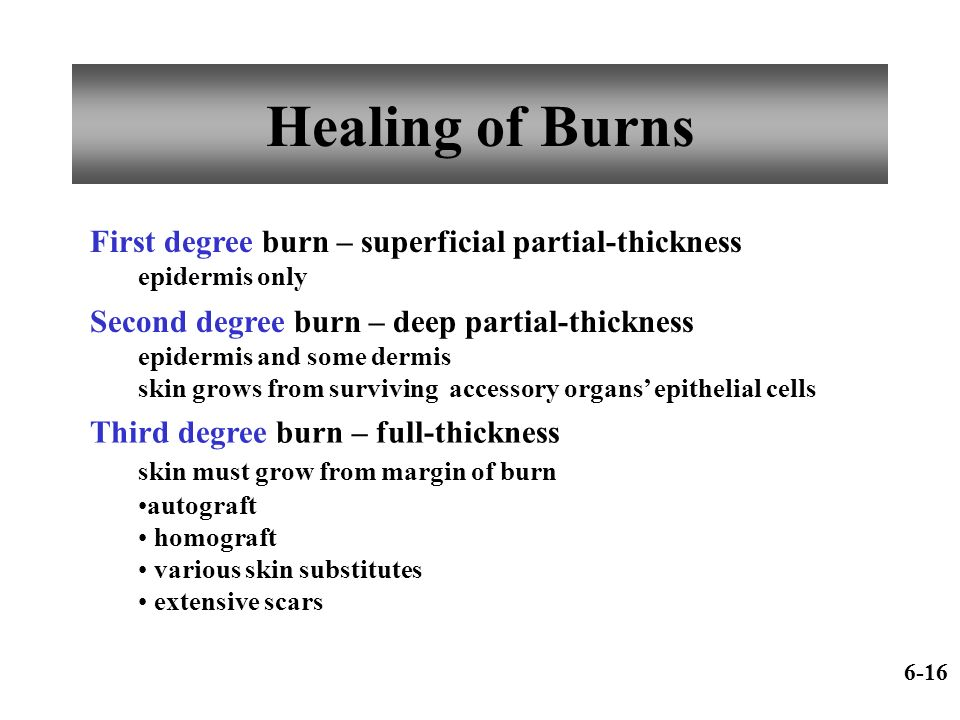 Healing of Burns First degree burn – superficial partial-thickness