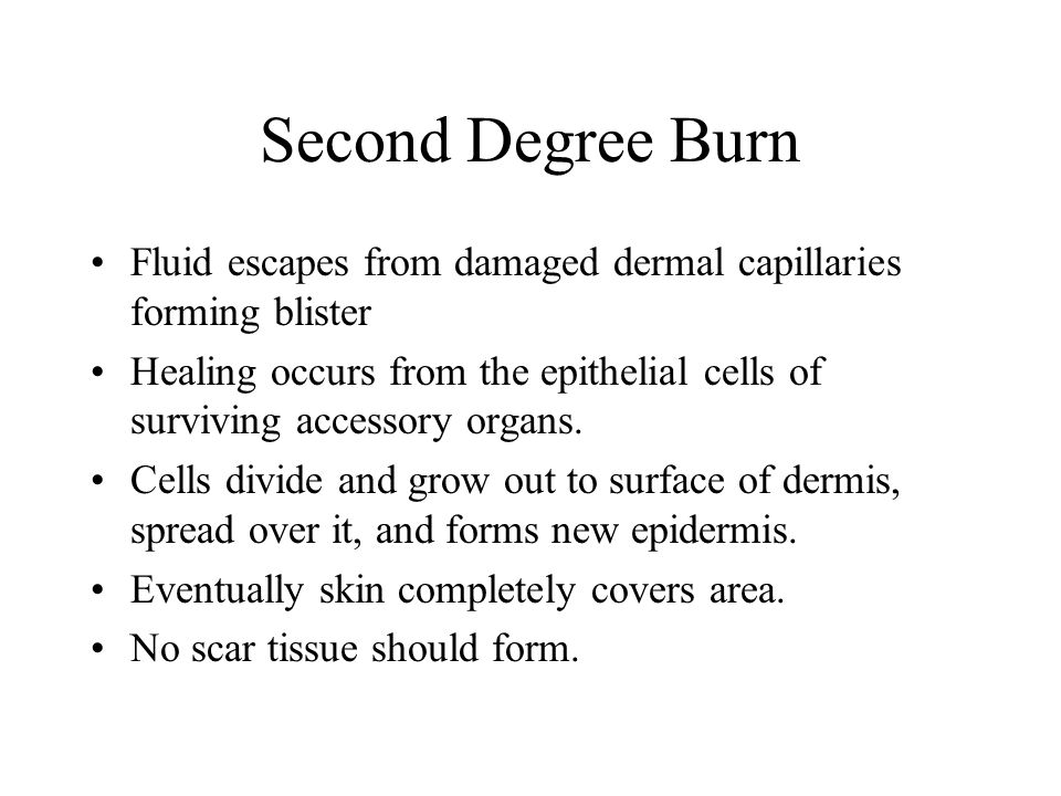 Second Degree Burn Fluid escapes from damaged dermal capillaries forming blister.