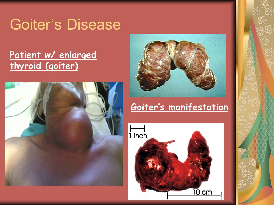 Goiter's Disease Patient w/ enlarged thyroid (goiter)