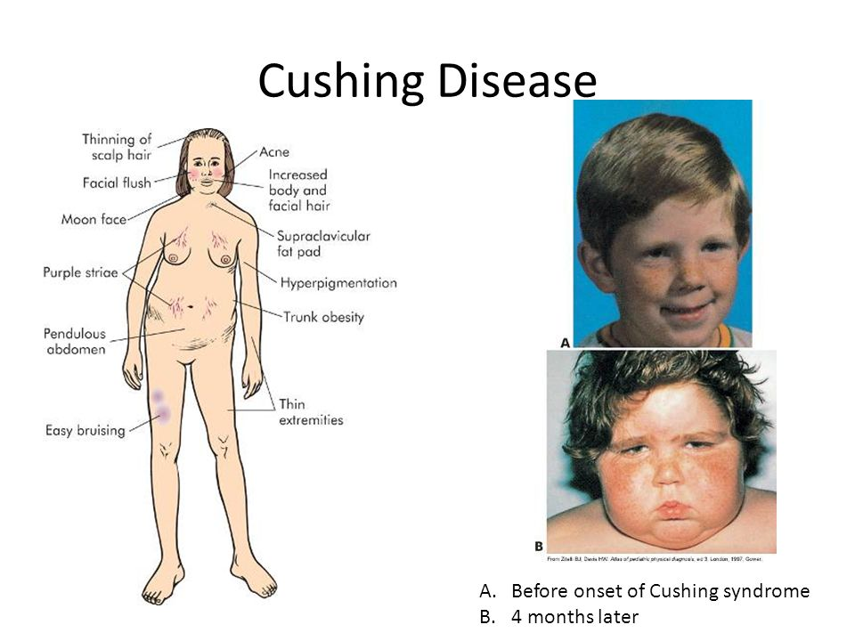 cushing's syndrome and hyperpigmentation Hyperpigmentation and pituitary tumor as sequelae of the surgical treatment of cushing's syndrome.