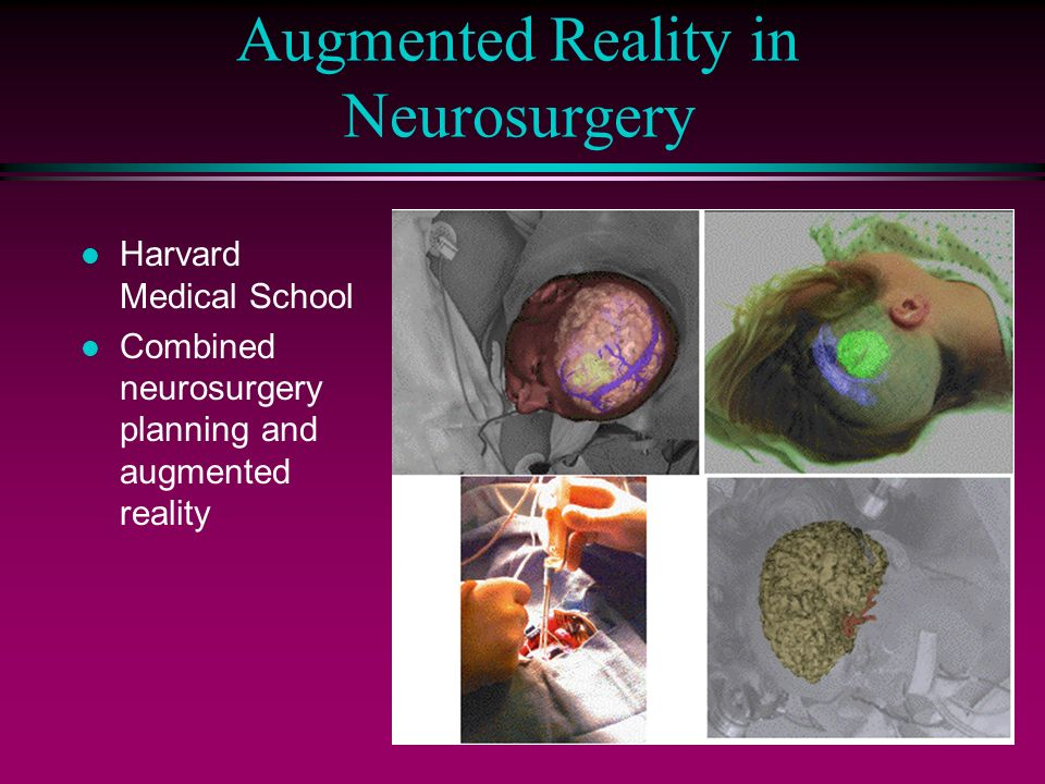 Harvard thesis augmented reality