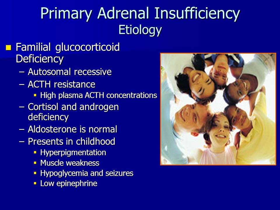 Primary Adrenal Insufficiency Etiology