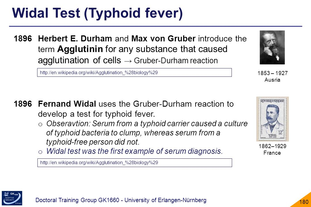 Widal Test (Typhoid fever)