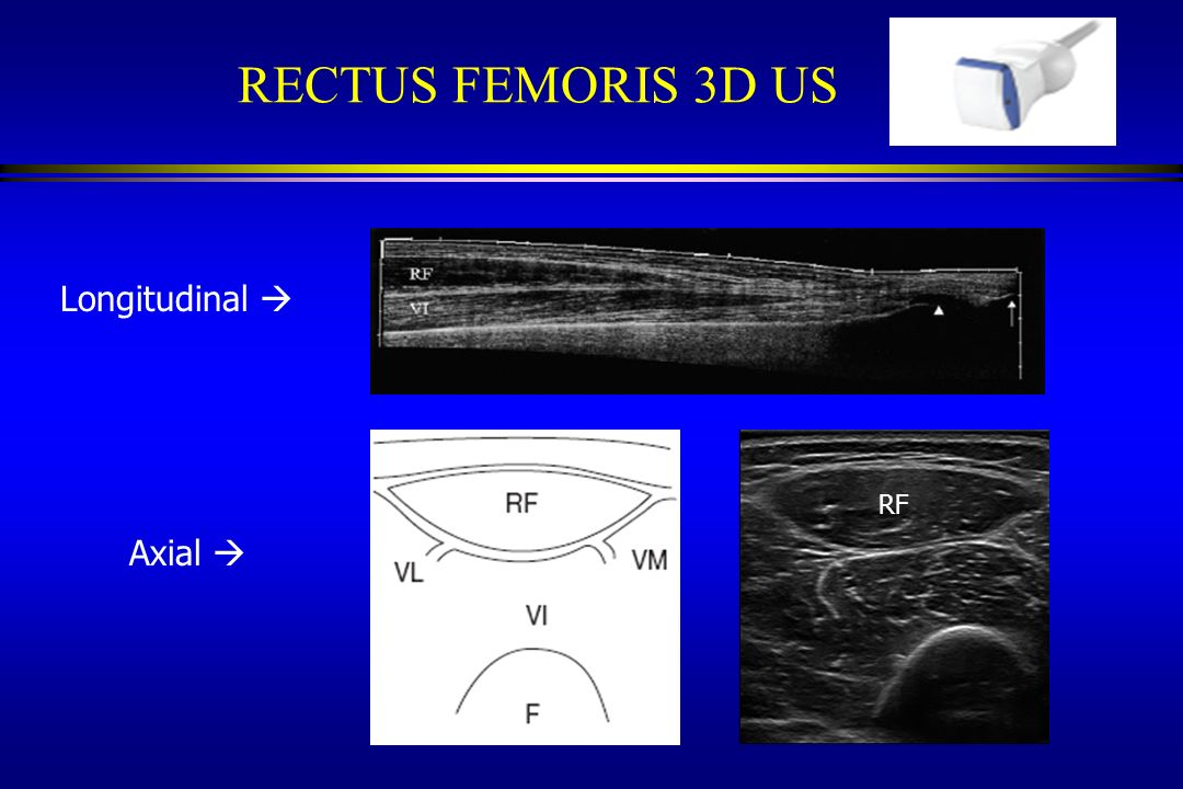 RECTUS FEMORIS 3D US Longitudinal  RF Axial 