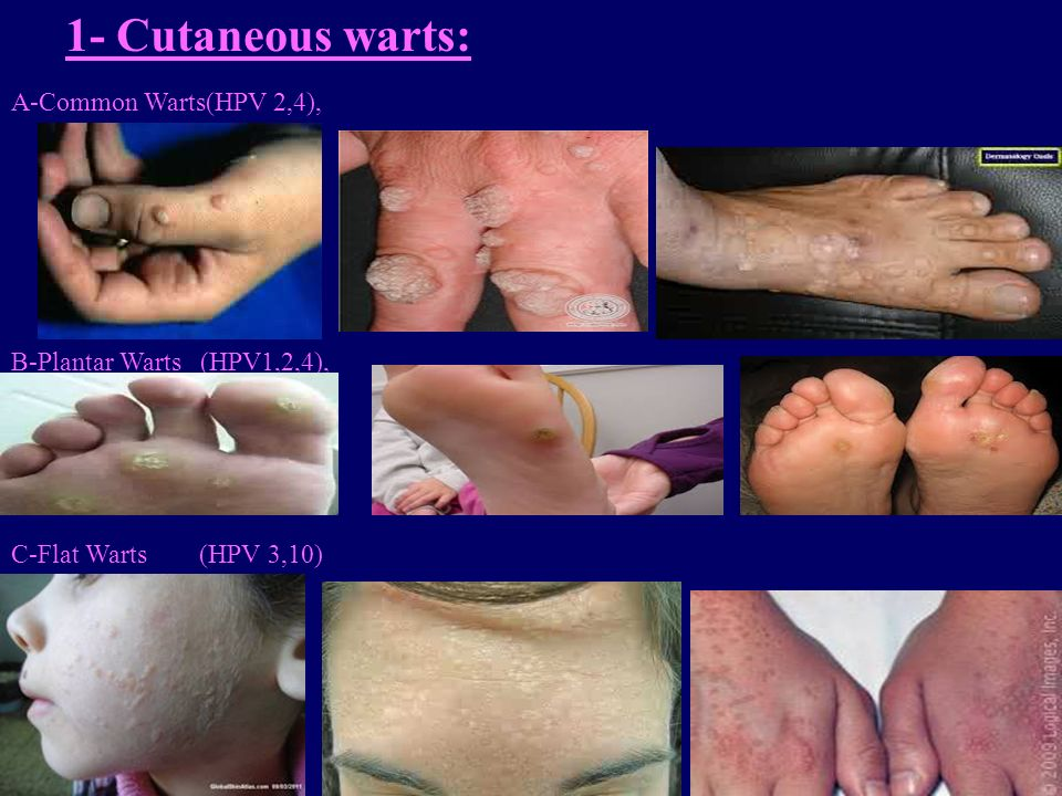 1- Cutaneous warts: A-Common Warts(HPV 2,4),