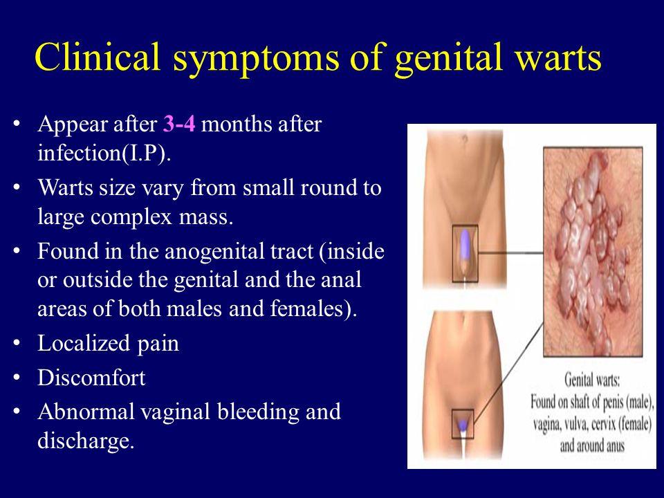 Clinical symptoms of genital warts