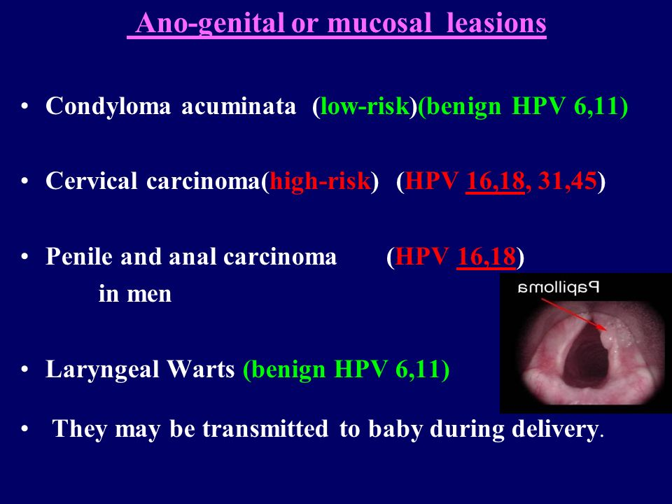 Ano-genital or mucosal leasions
