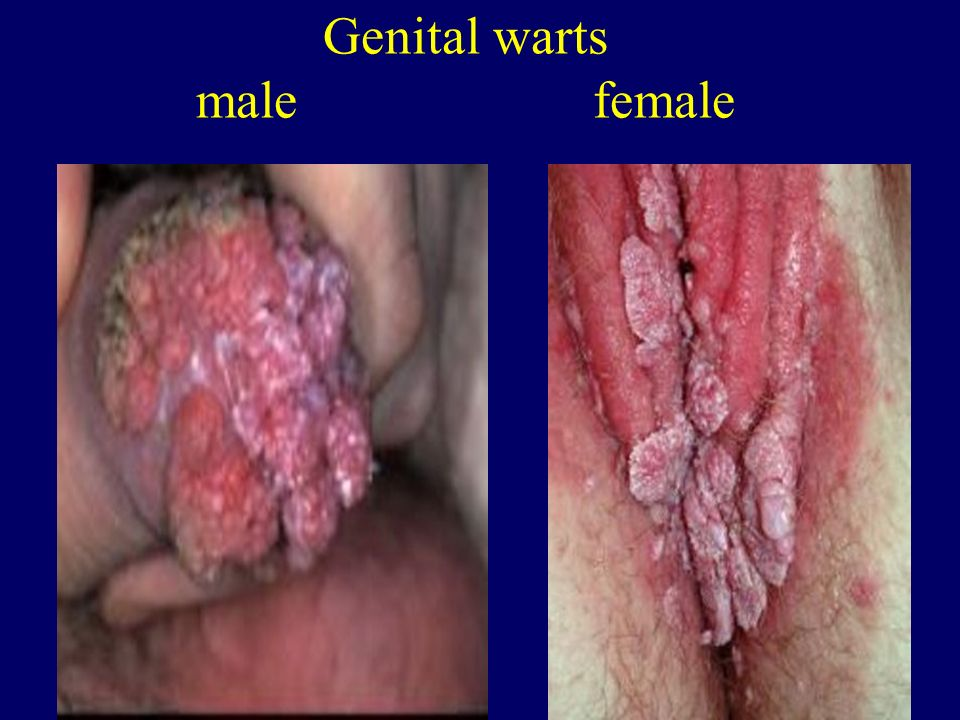 Genital warts male female