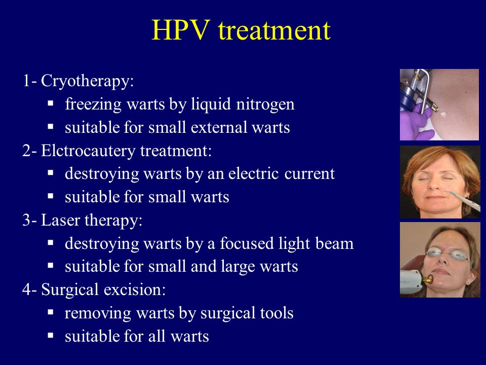 HPV treatment 1- Cryotherapy: freezing warts by liquid nitrogen
