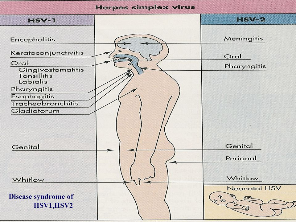 Disease syndrome of HSV1,HSV2