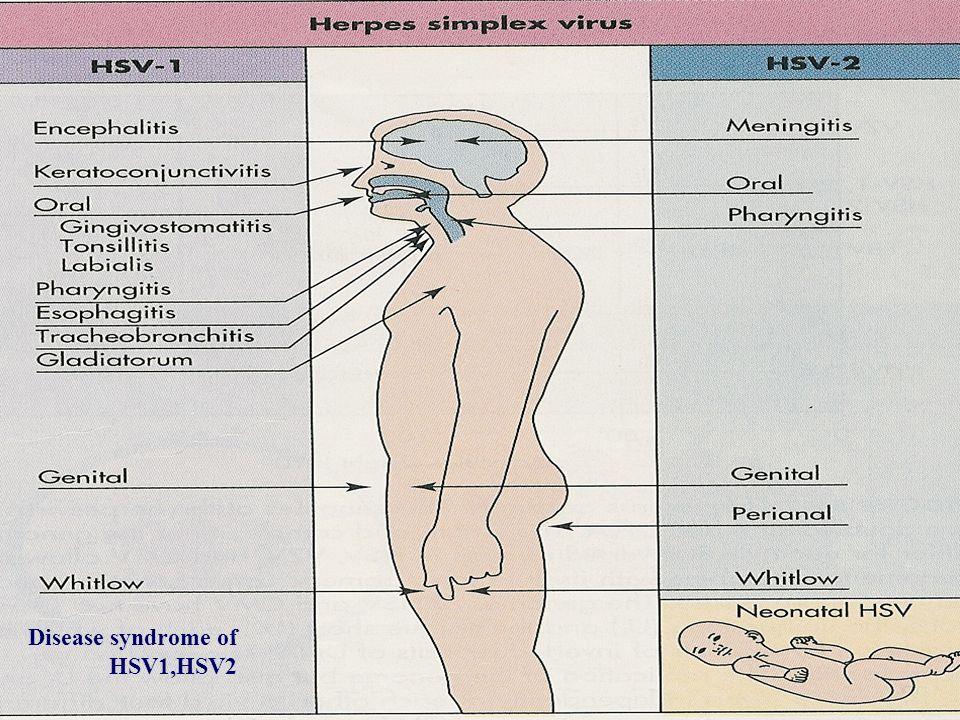 Disease syndrome of HSV1,HSV2