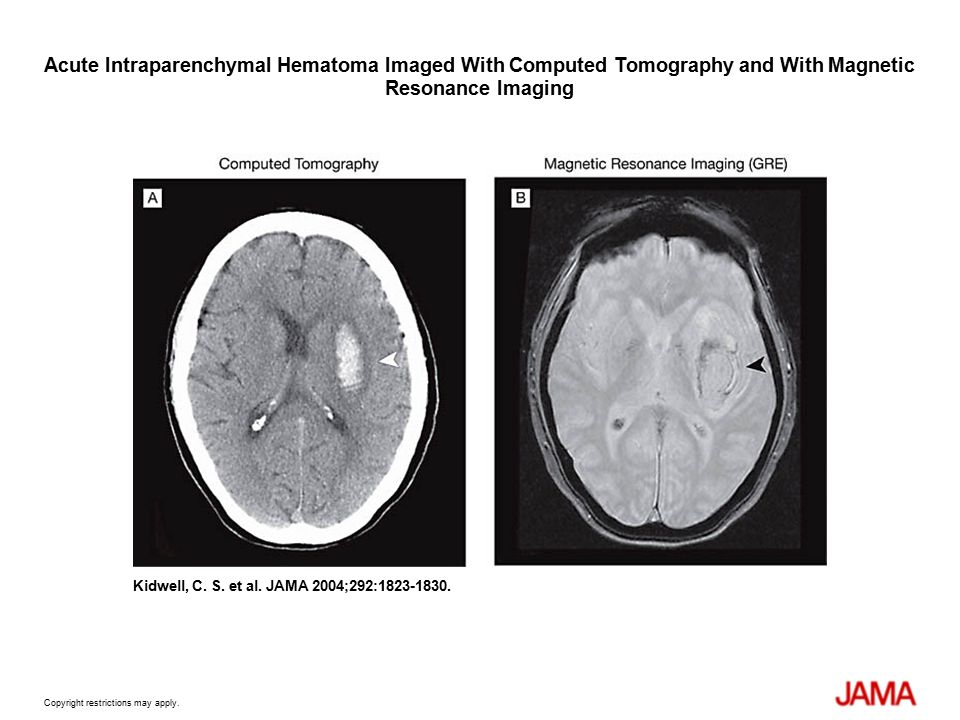 STROKE, SUBARACHNOID HEMORRHAGE AND HYPOTHERMIA FOR ...