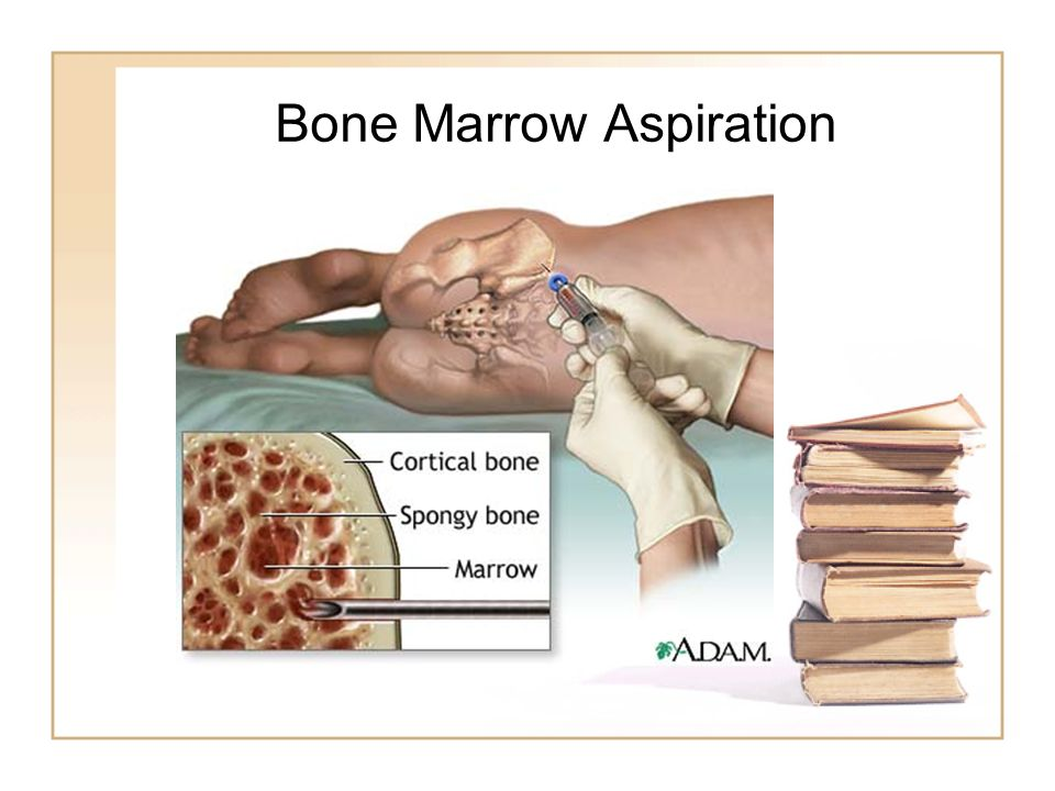 thesis on bones Enjoy free essays term paper on bone cancer term paper on bone cancer abstract bone cancer is a disease that occurs on or inside a bone.
