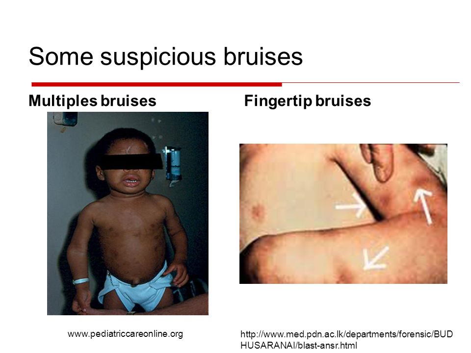 Some suspicious bruises