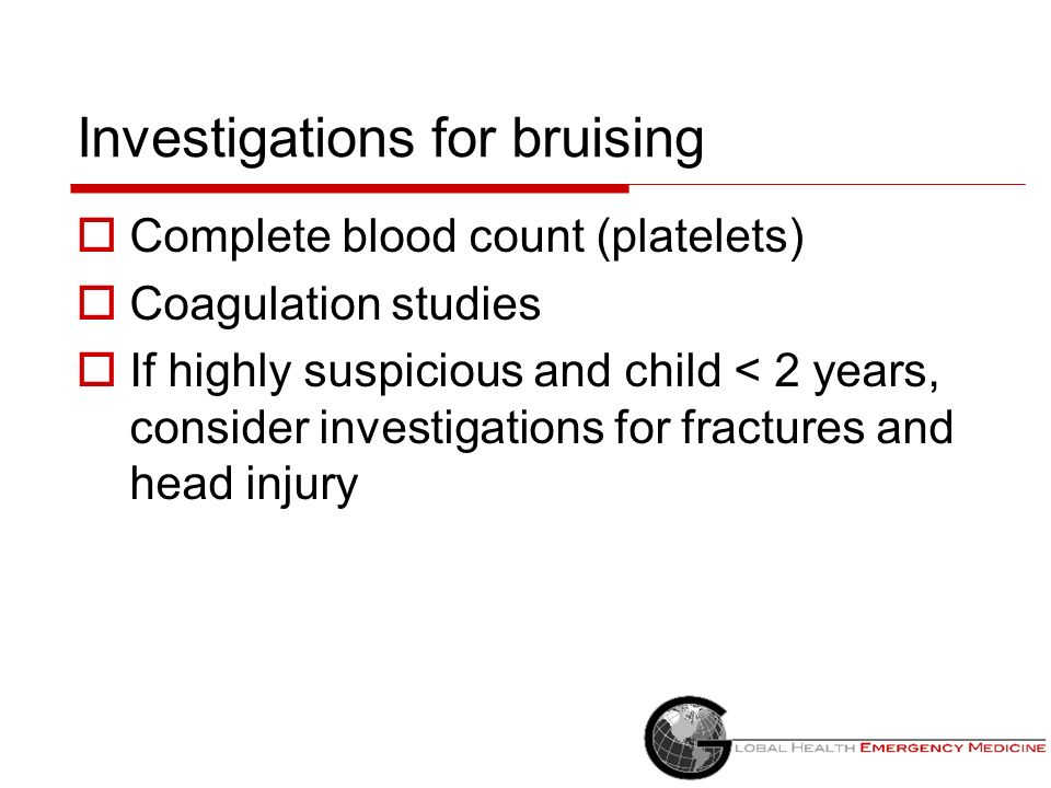 Investigations for bruising