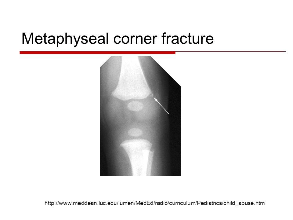 Metaphyseal corner fracture