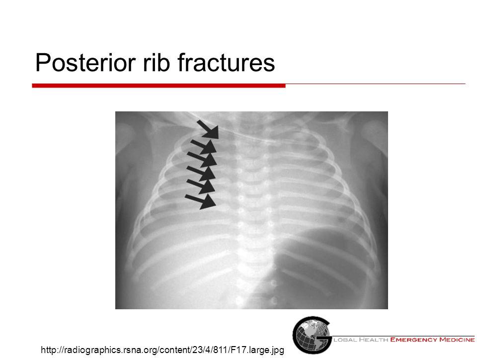 Posterior rib fractures